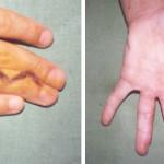 Összenőtt ujjak (Syndactilia)