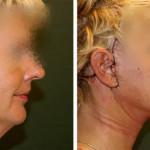 Arc- nyakránc-plasztika / Műtét után 2 héttel